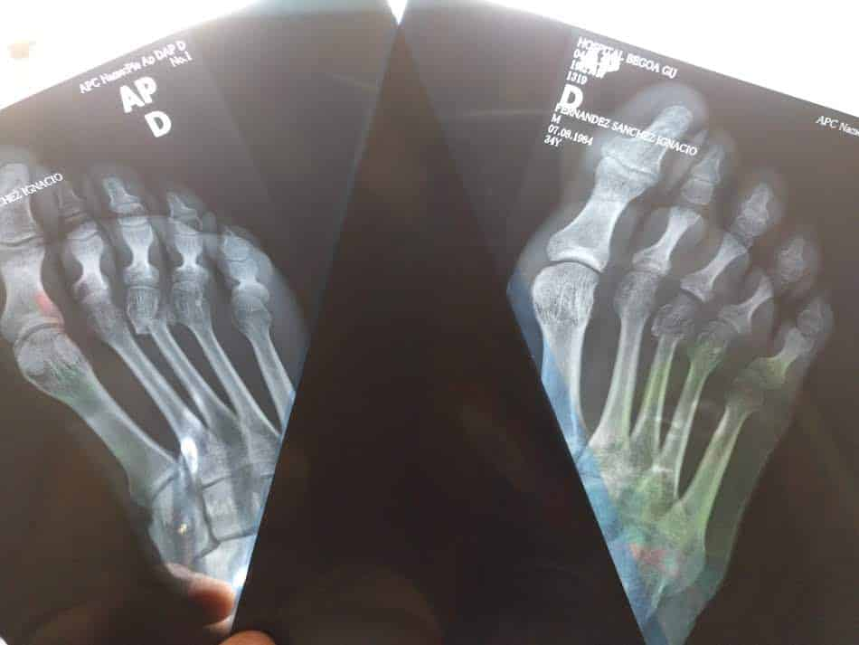 El día de decidí despedir a mi jefe. Mi radiografía del dedo roto del pie.